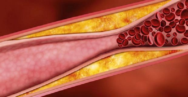 colesterolo-nuovo-farmaco-per-ridurlo
