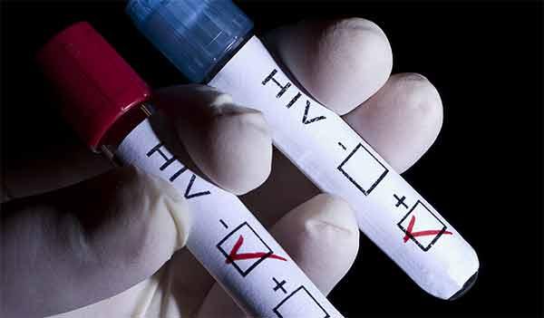 HIV nuove denunce e salgono i contagi di Valentino